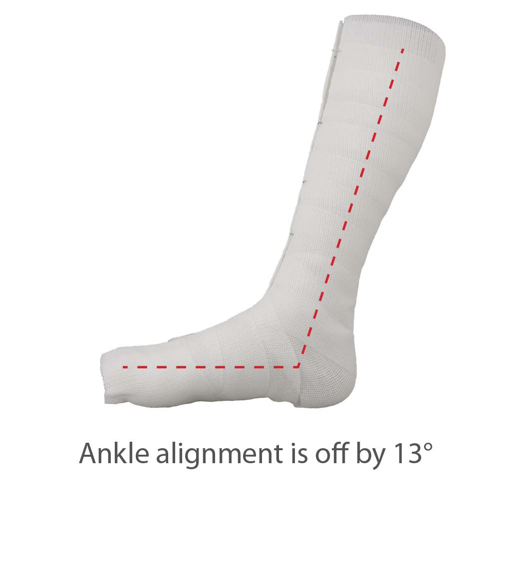 Ankle is off