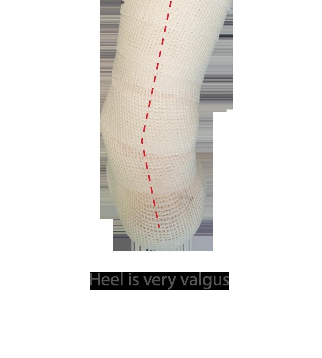 Heel is very valgus