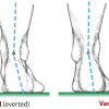 Hindfoot Alignment